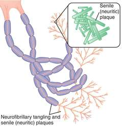 neurofibrillary-tangles